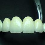 Diş Teknisyeni Adem Belen